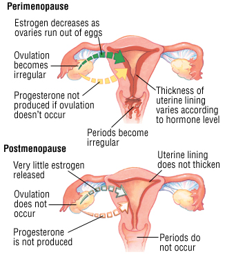 Perimenopause-and-menopause-changes